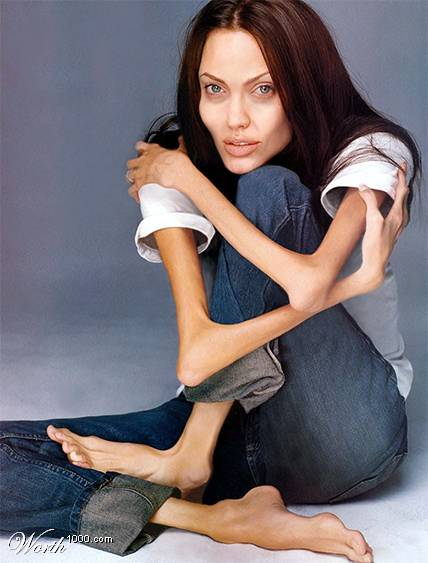 Angelina Jolie Anorexia